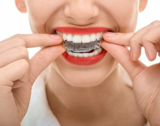 Top 6 Benefits When You Are Thinking About Invisible Braces
